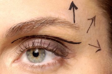 Cirurgia de Plástica Ocular